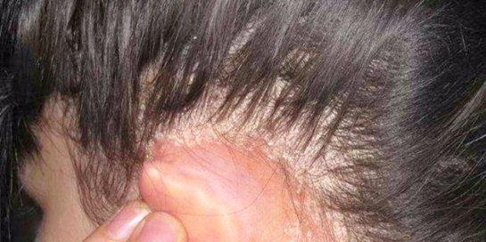 Фото с сайта: Hairproblem.ru