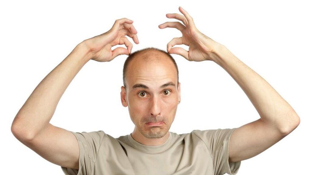 Почему у мужчин выпадают волосы как с этим бороться